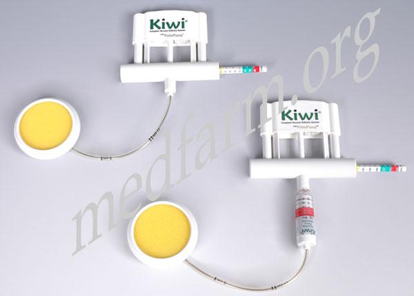 Система родовспоможения Kiwi